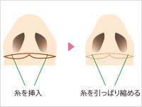 整形 ない 鼻 切ら
